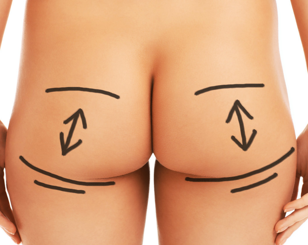 A Picture Of A Female Butt With Surgery Markers Isolated Over White Background